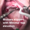 Maxilla mucosa support full edentulous with minimal flap elevation  after sinus lift– By Dr. Beitlitum Ilan-HD