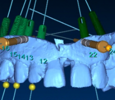 –	Maxilla tooth support with minimal flap elevation  By Dr. Vaknin Zion. / R.D.C Clinic -HD