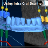 Intraoral Laser scan (iTero) by Dr. Abba Michael – HD